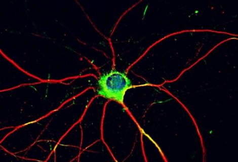 Photo of a neuron