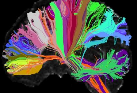 Photo of a brain showing the wiring inside. Image by NIH (Creative commons)
