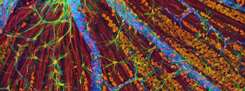 Photo of optic fiber layer that is responsible for relaying information from the retina to the brain. Image by NIH (Creative commons)